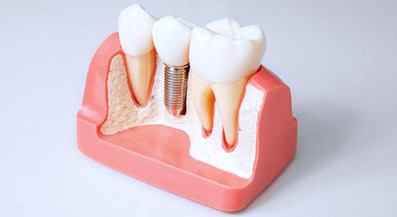 Протезирование зубов виды и цены в кургане