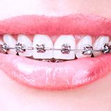 ортодонтическая стоматология