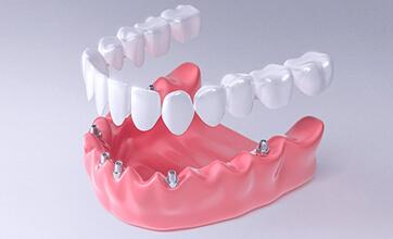 Протезирование зубов по системе «All On»