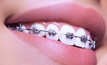 Установка металлической брекет системы на один зубной ряд.
