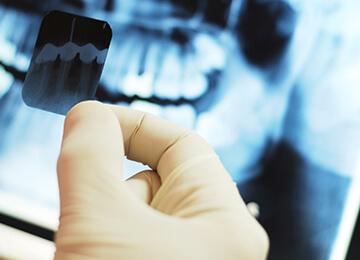 Проверка костной ткани перед имплантацией зубов