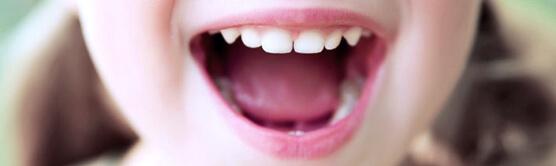 Пластика уздечки языка у детей