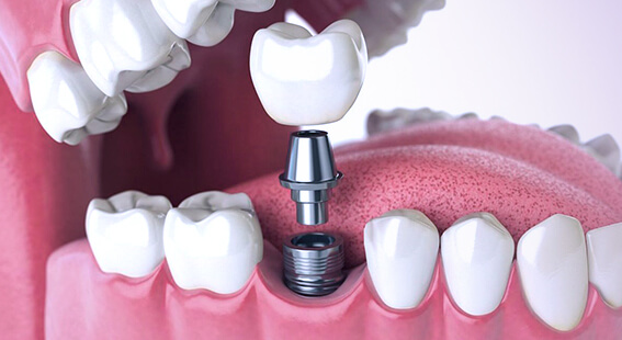Протезирование зубов на имплантатах