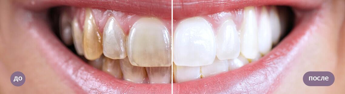 результат чистки зубов ультразвуком