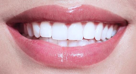 Ультразвуковая чистка в стоматологии Симметрия
