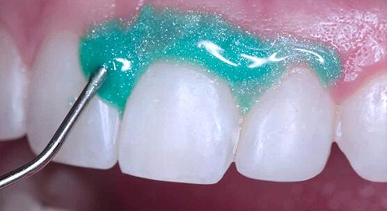 Химическое профессиональное отбеливание зубов
