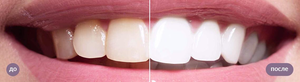 До и после. Результат отбеливания зубов Opalescence