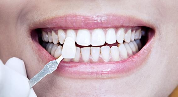 Виниры для зубов миллион