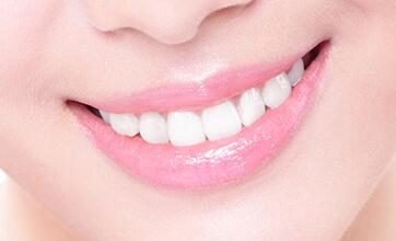 Результат установки зубных имплантатов