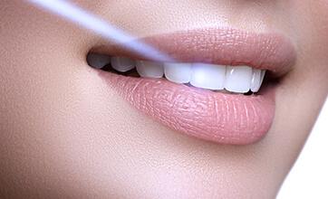 Акция на лазерное отбеливание зубов Doctor Smile