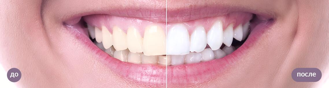 Результат лазерного отбеливания зубов: до и после