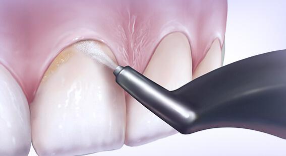 Чистка зубов air-flow