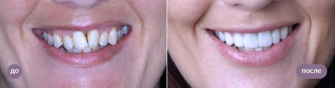 Результат установки виниров emax, до и после
