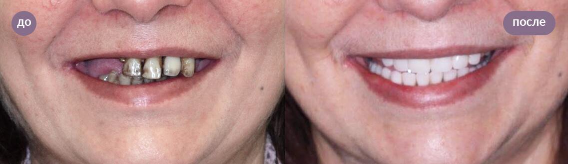 Результат протезирования зубов All-on-6