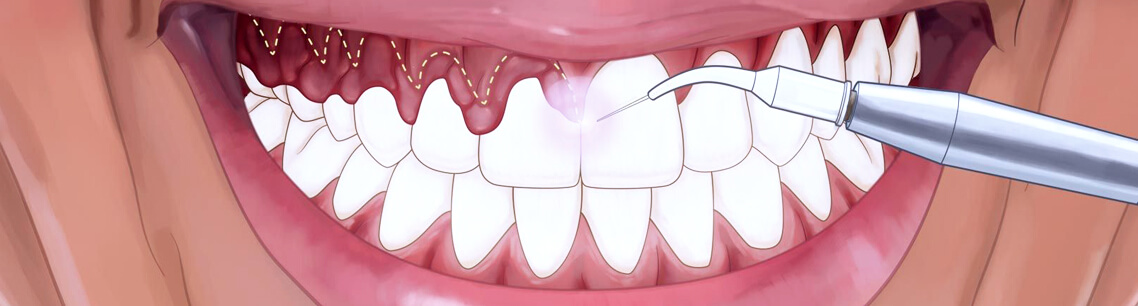 Гингивэктомия в лазерной стоматологии