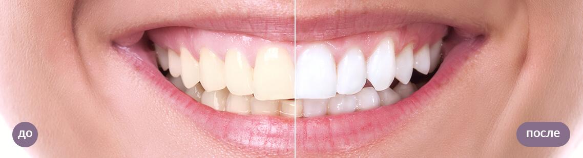 Результат отбеливания зубов ZOOM 4. До и после.