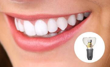 Акция! Имплантат Dentium «под ключ» с установкой циркониевой коронки