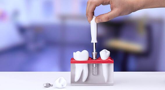 Зубные имплантаты straumann